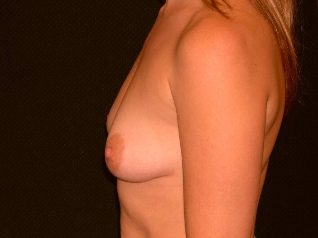 Breast Augmentation Gallery - Patient 39244356 - Image 9