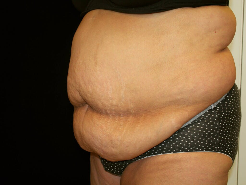 Tummy Tuck Gallery - Patient 39244359 - Image 7