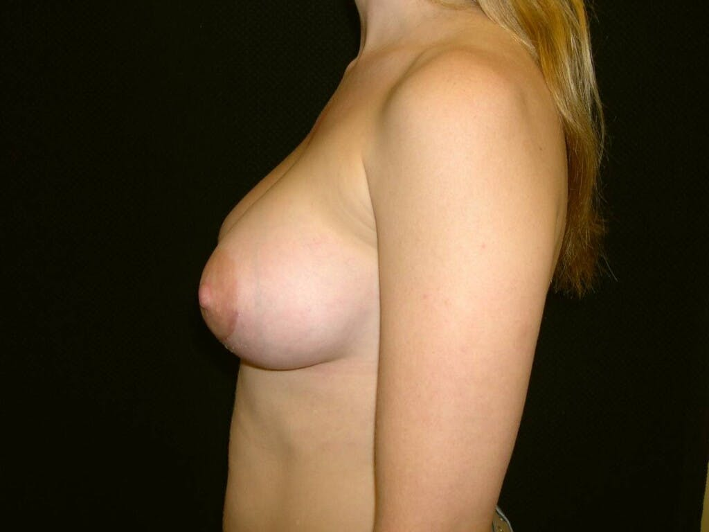 Breast Augmentation Gallery - Patient 39244356 - Image 10