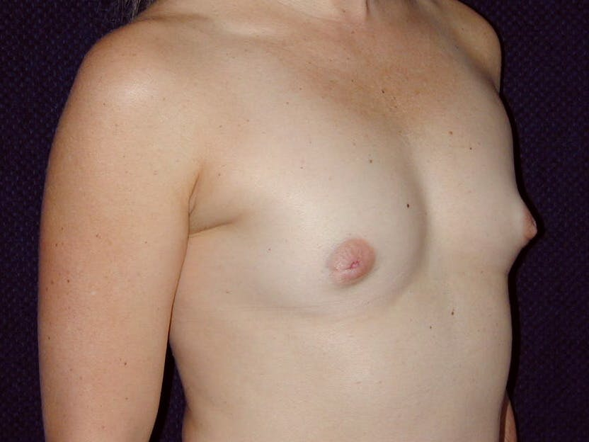 Breast Augmentation Gallery - Patient 39244363 - Image 1