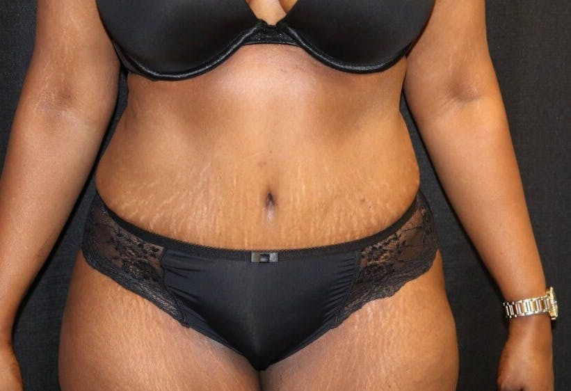 Tummy Tuck Gallery - Patient 39244367 - Image 2