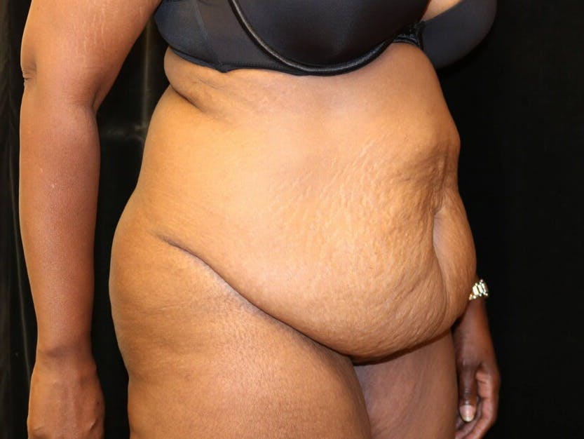 Tummy Tuck Gallery - Patient 39244367 - Image 3