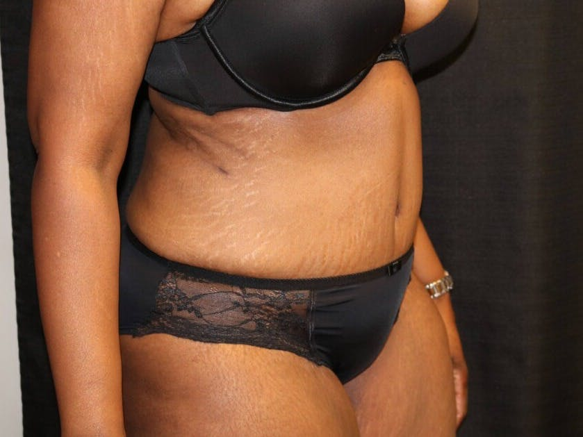 Tummy Tuck Gallery - Patient 39244367 - Image 4