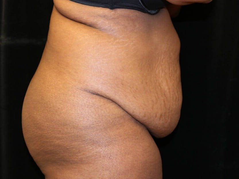 Tummy Tuck Gallery - Patient 39244367 - Image 5