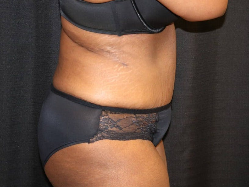 Tummy Tuck Gallery - Patient 39244367 - Image 6