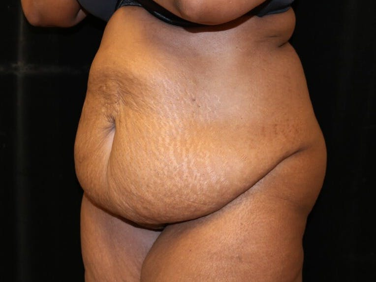 Tummy Tuck Gallery - Patient 39244367 - Image 7