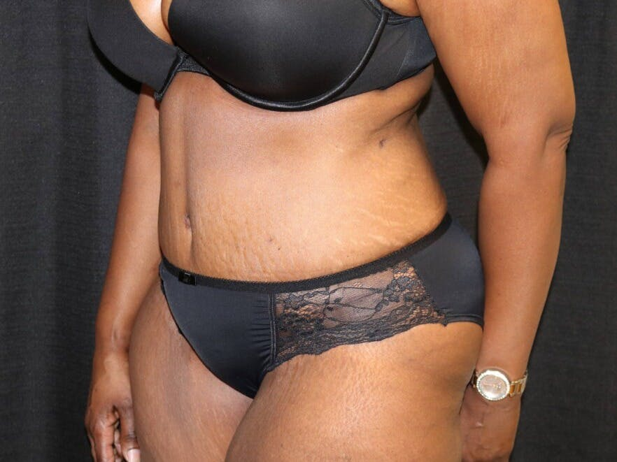 Tummy Tuck Gallery - Patient 39244367 - Image 8