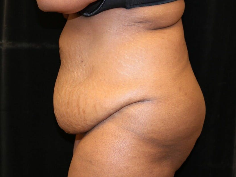 Tummy Tuck Gallery - Patient 39244367 - Image 9