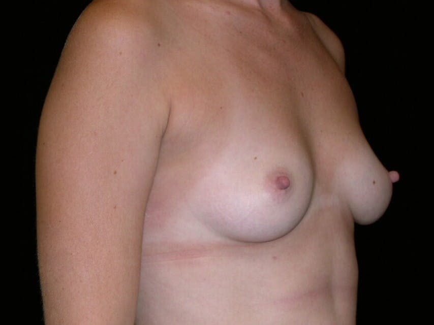 Breast Augmentation Gallery - Patient 39244370 - Image 1
