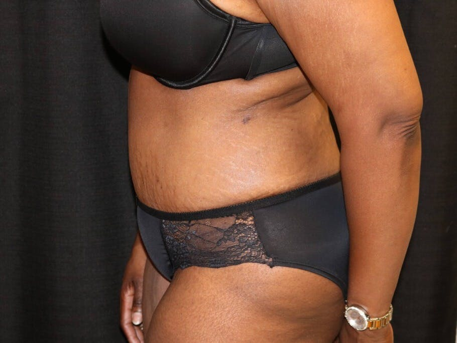 Tummy Tuck Gallery - Patient 39244367 - Image 10