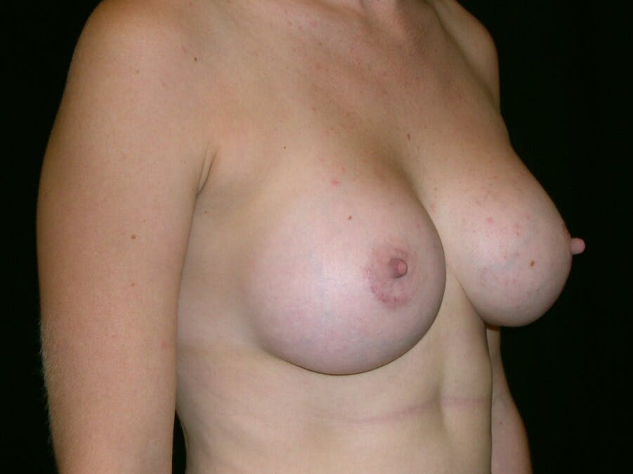 Breast Augmentation Gallery - Patient 39244370 - Image 2