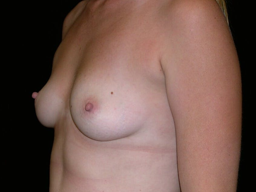 Breast Augmentation Gallery - Patient 39244370 - Image 3