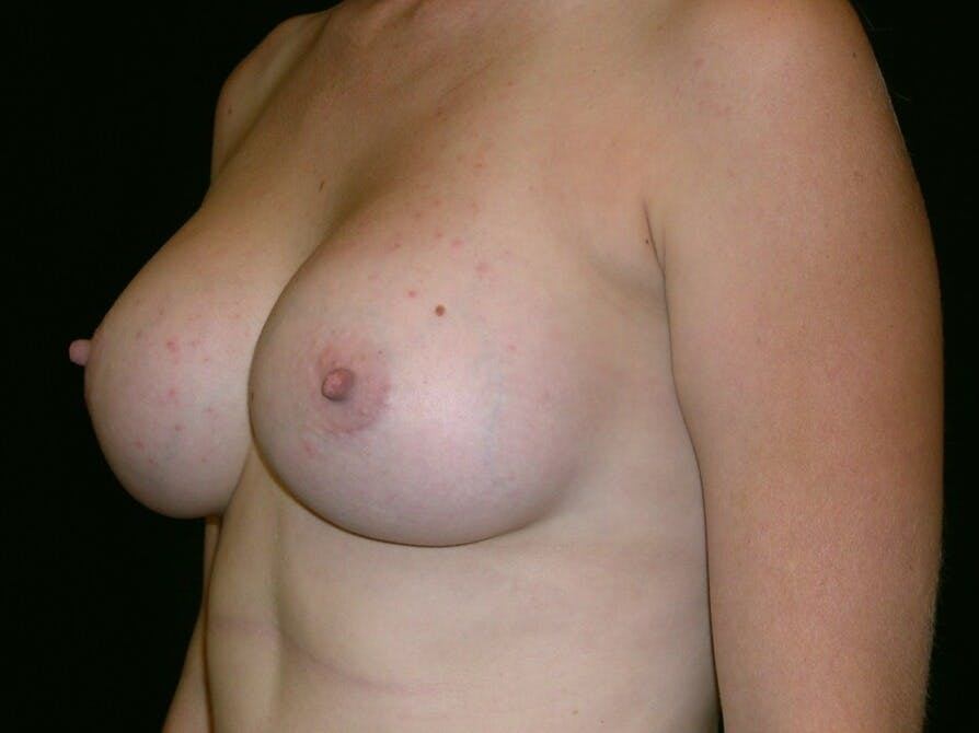 Breast Augmentation Gallery - Patient 39244370 - Image 4