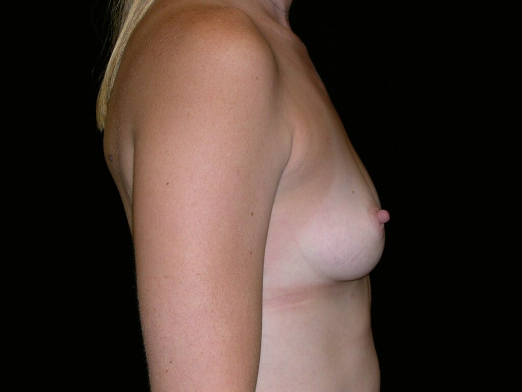 Breast Augmentation Gallery - Patient 39244370 - Image 5