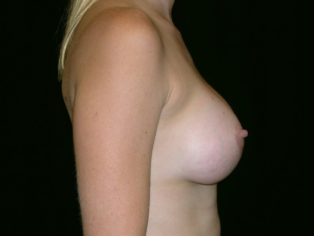 Breast Augmentation Gallery - Patient 39244370 - Image 6