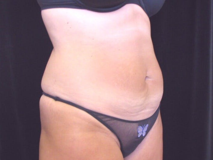 Tummy Tuck Gallery - Patient 39244371 - Image 3