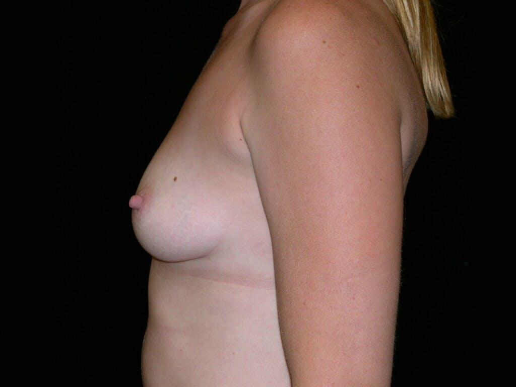 Breast Augmentation Gallery - Patient 39244370 - Image 7