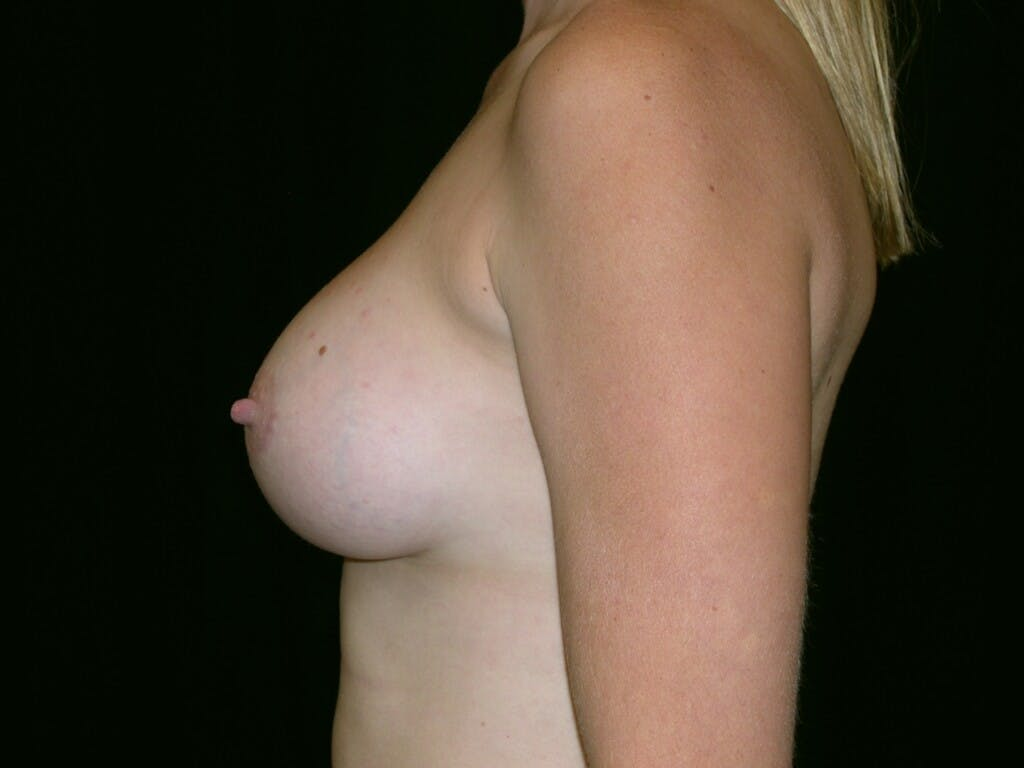 Breast Augmentation Gallery - Patient 39244370 - Image 8