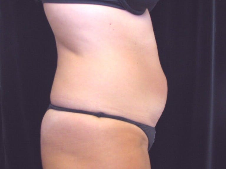 Tummy Tuck Gallery - Patient 39244371 - Image 5