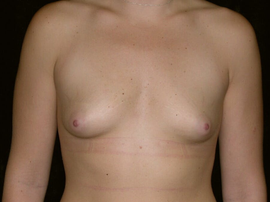 Breast Augmentation Gallery - Patient 39244372 - Image 1
