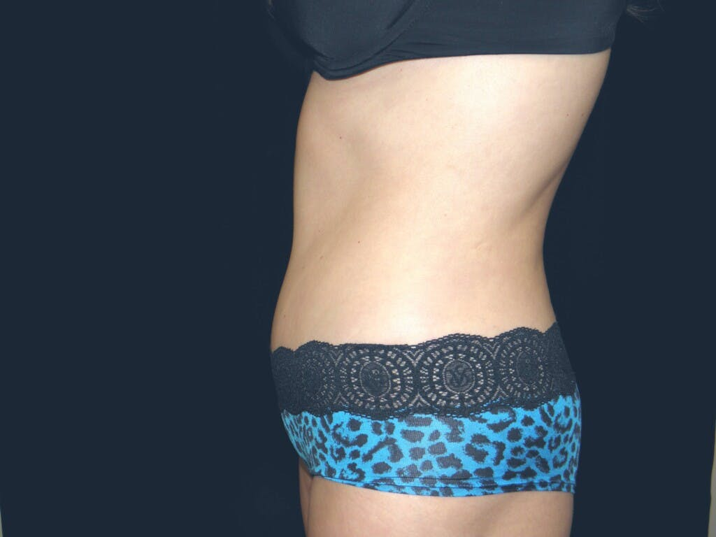 Tummy Tuck Gallery - Patient 39244371 - Image 10