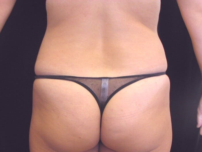 Tummy Tuck Gallery - Patient 39244371 - Image 11