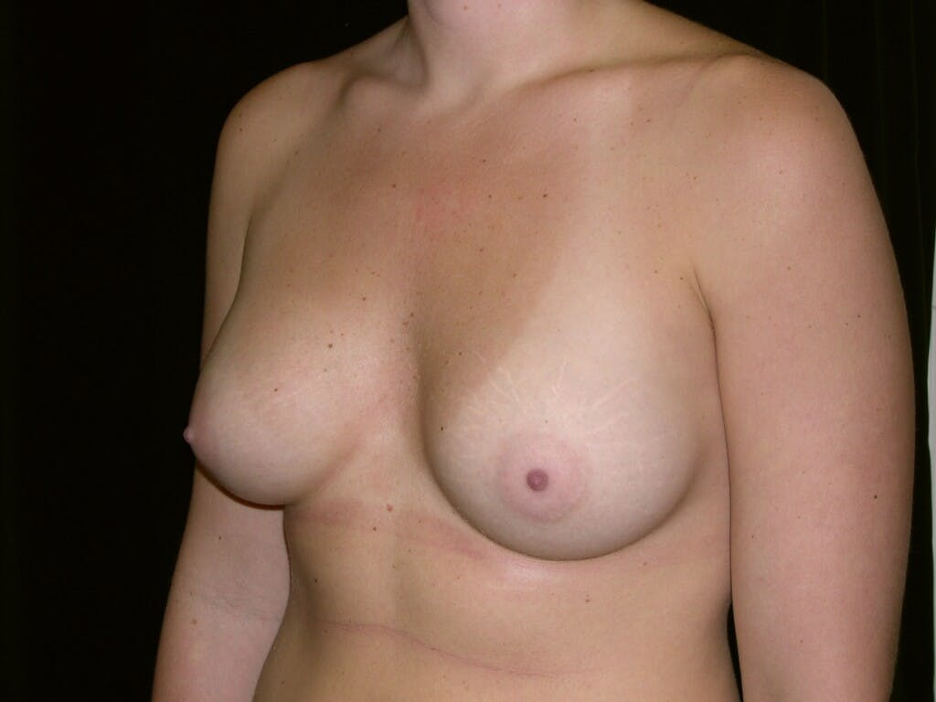 Breast Augmentation Gallery - Patient 39244372 - Image 4
