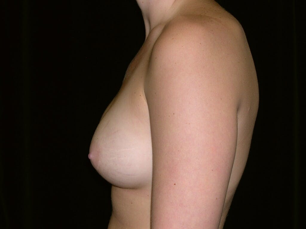 Breast Augmentation Gallery - Patient 39244372 - Image 6