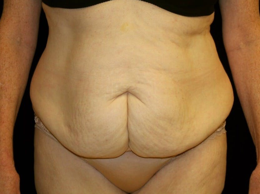 Tummy Tuck Gallery - Patient 39245205 - Image 1