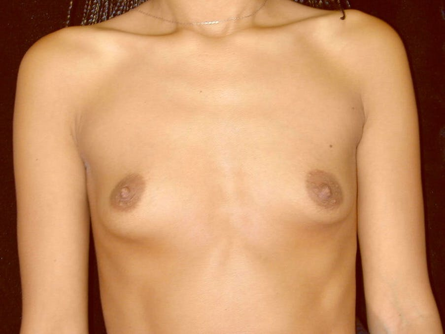 Breast Augmentation Gallery - Patient 39245206 - Image 1
