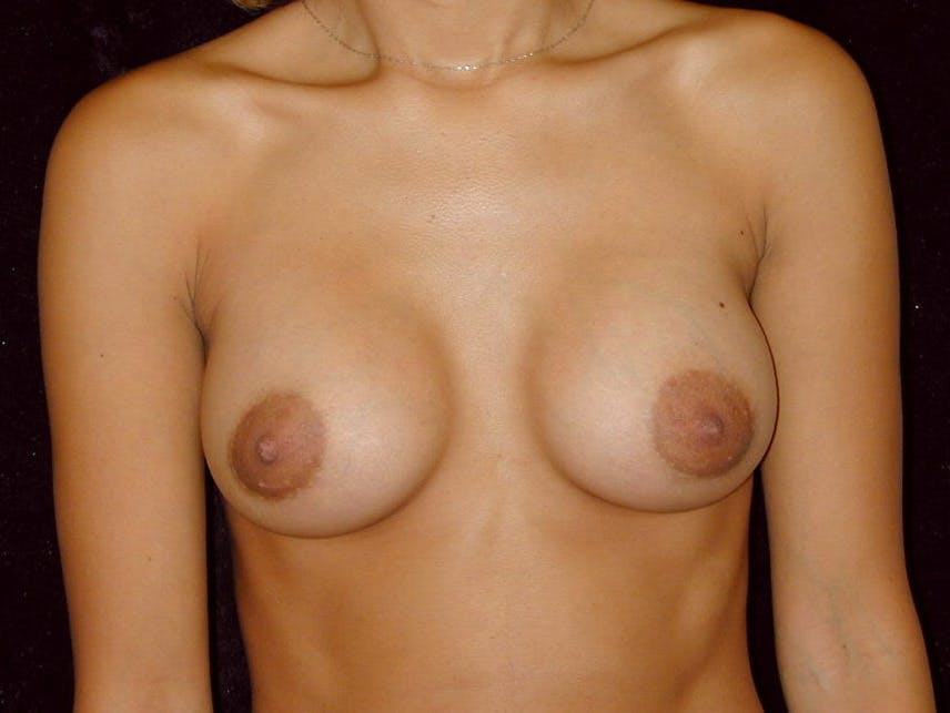 Breast Augmentation Gallery - Patient 39245206 - Image 2
