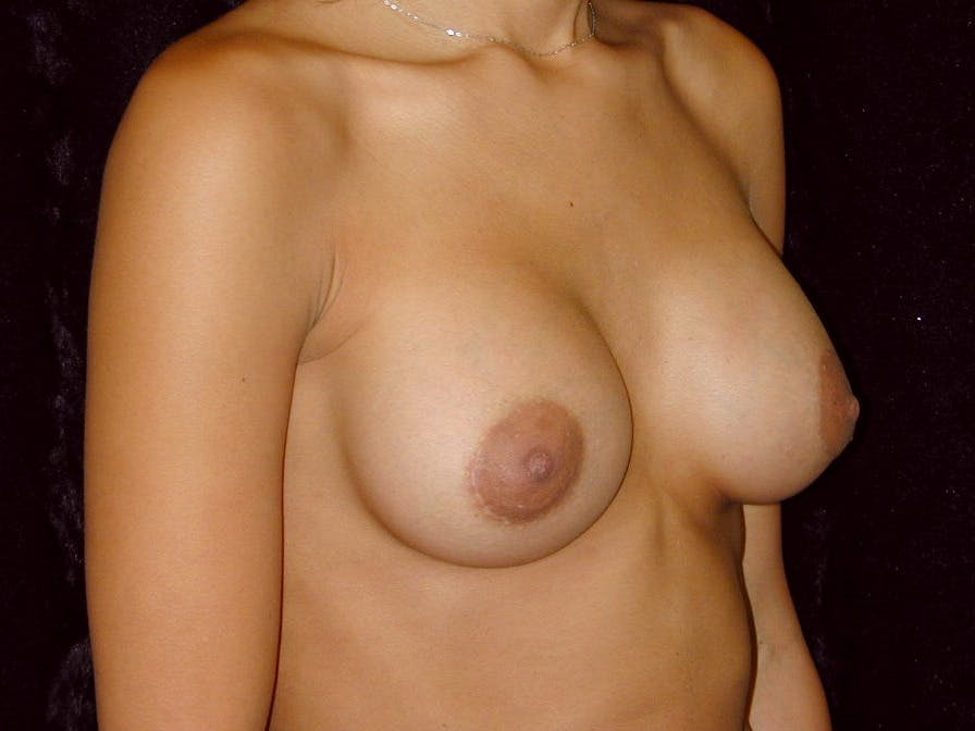 Breast Augmentation Gallery - Patient 39245206 - Image 4