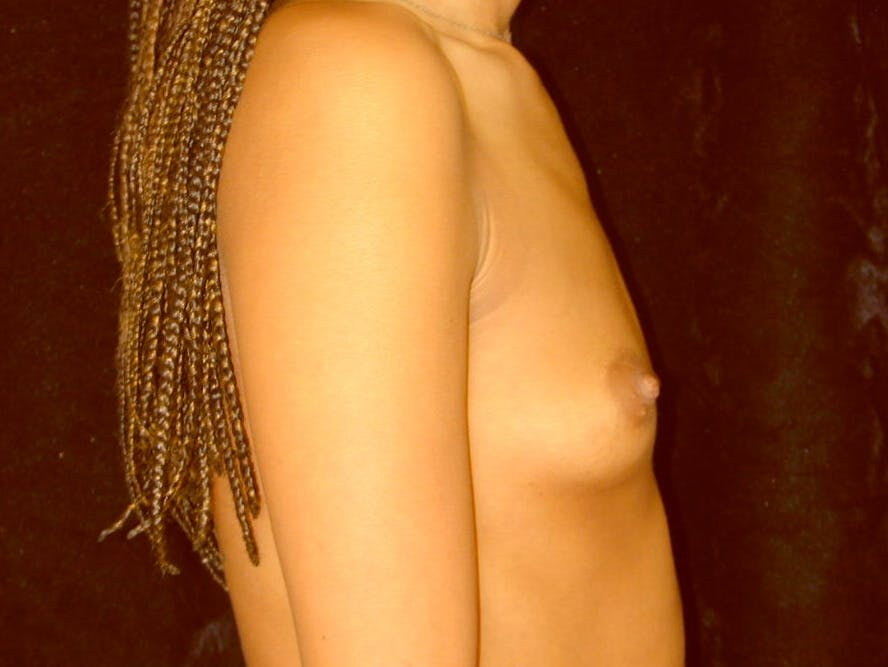 Breast Augmentation Gallery - Patient 39245206 - Image 5