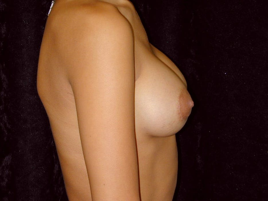 Breast Augmentation Gallery - Patient 39245206 - Image 6