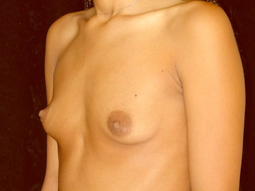 Breast Augmentation Gallery - Patient 39245206 - Image 7