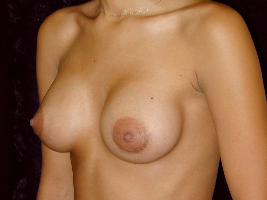 Breast Augmentation Gallery - Patient 39245206 - Image 8