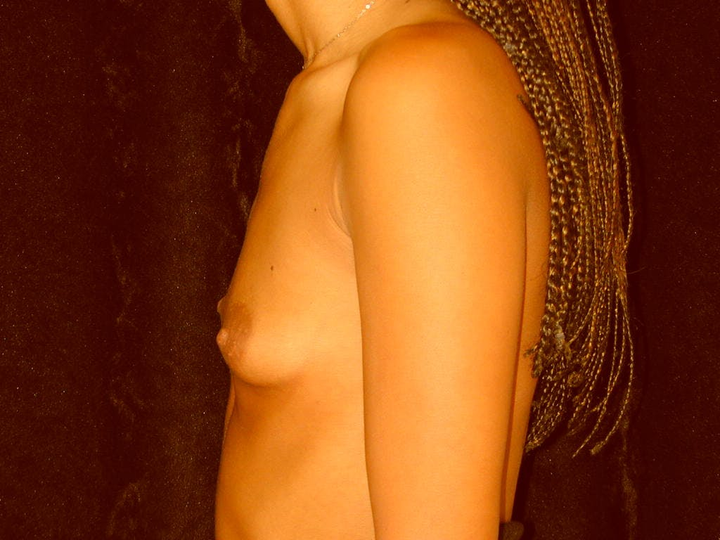 Breast Augmentation Gallery - Patient 39245206 - Image 9