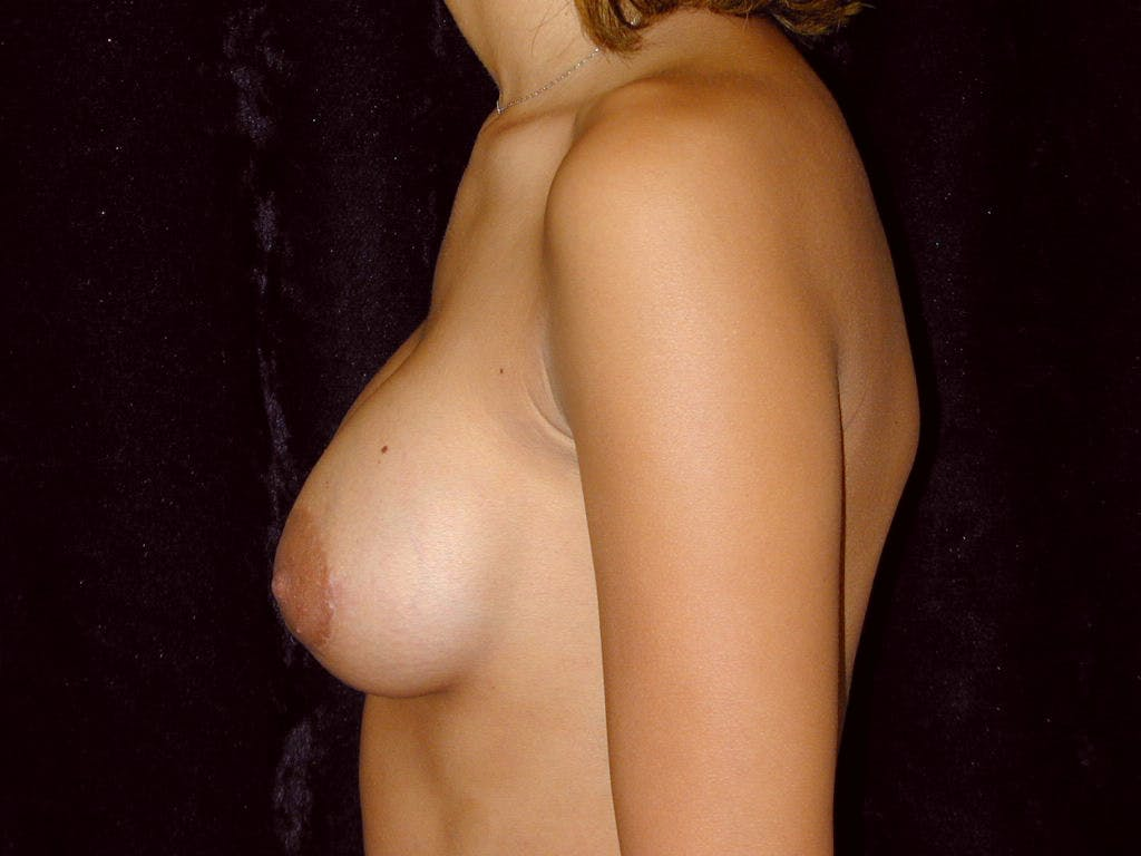 Breast Augmentation Gallery - Patient 39245206 - Image 10