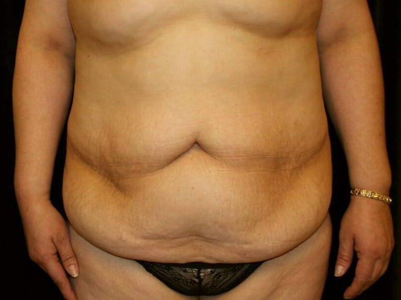Tummy Tuck Gallery - Patient 39245214 - Image 1