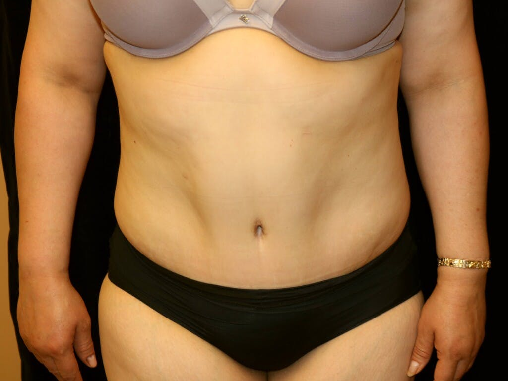 Tummy Tuck Gallery - Patient 39245214 - Image 2
