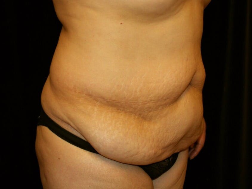 Tummy Tuck Gallery - Patient 39245214 - Image 3