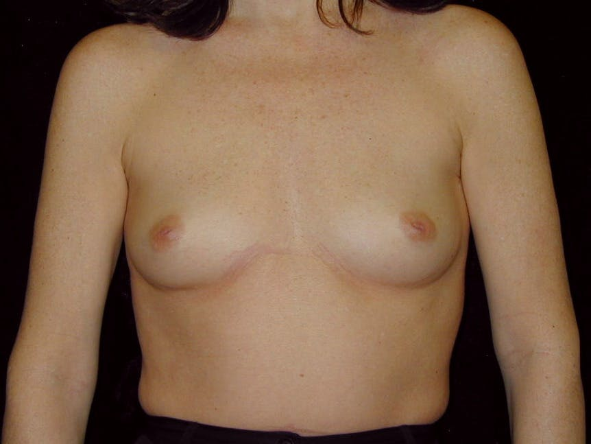Breast Augmentation Gallery - Patient 39245211 - Image 1