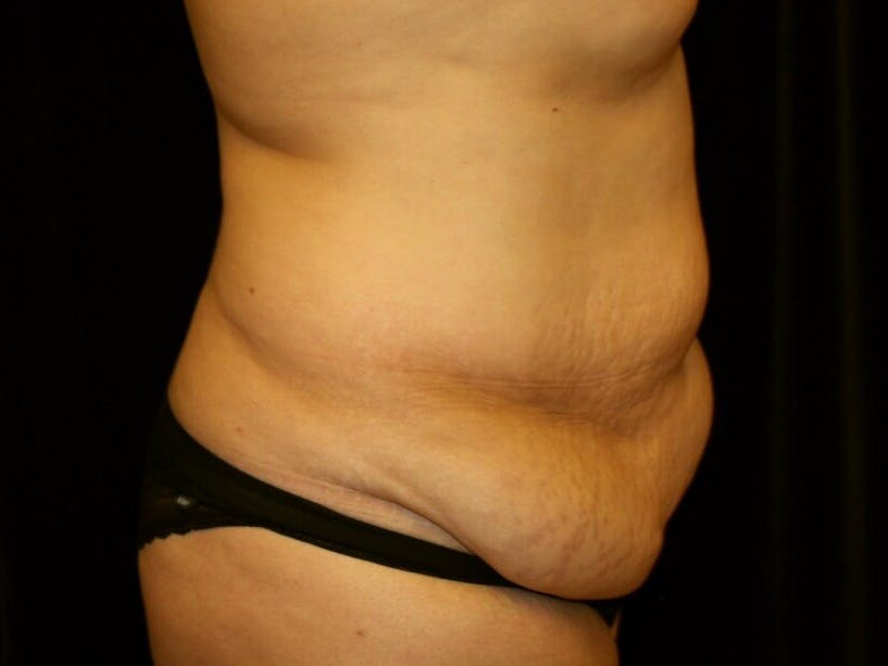 Tummy Tuck Gallery - Patient 39245214 - Image 5