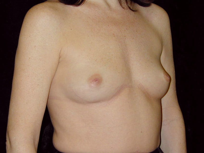 Breast Augmentation Gallery - Patient 39245211 - Image 3