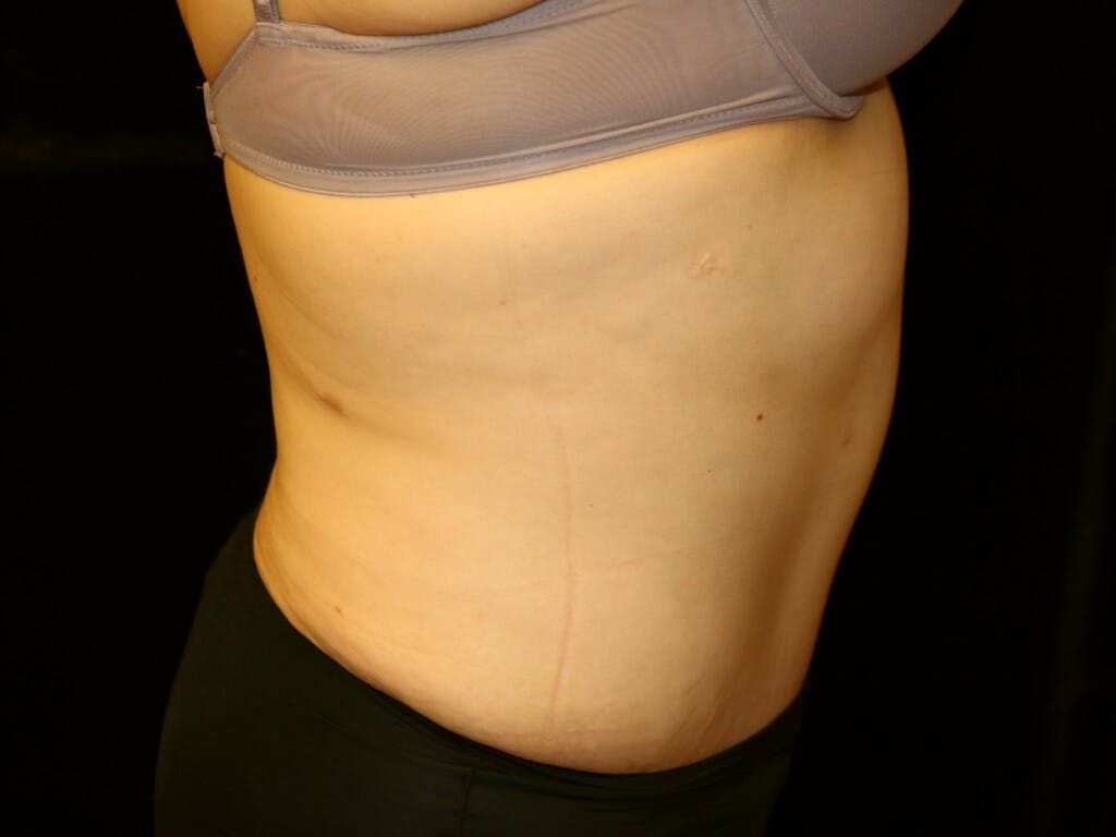 Tummy Tuck Gallery - Patient 39245214 - Image 6