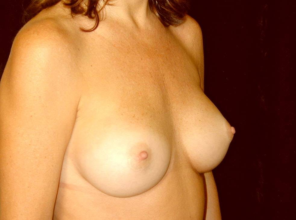 Breast Augmentation Gallery - Patient 39245211 - Image 4