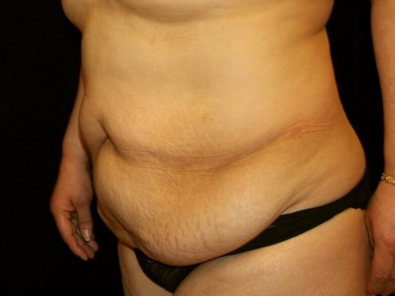 Tummy Tuck Gallery - Patient 39245214 - Image 7