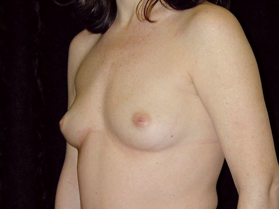 Breast Augmentation Gallery - Patient 39245211 - Image 5