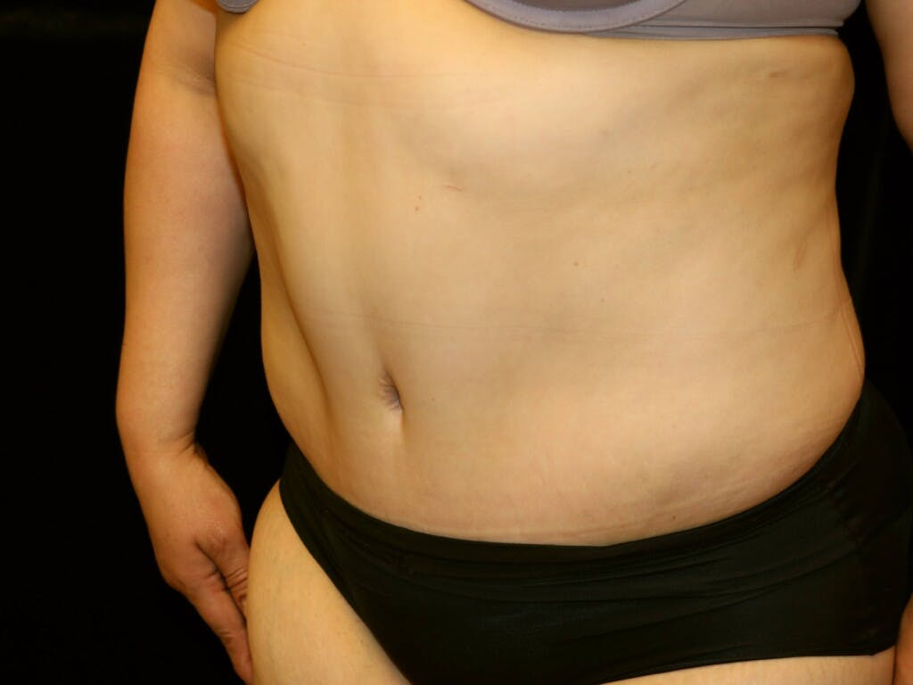 Tummy Tuck Gallery - Patient 39245214 - Image 8