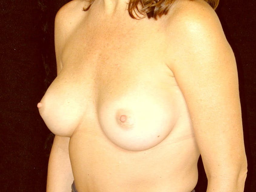 Breast Augmentation Gallery - Patient 39245211 - Image 6